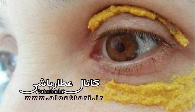 رفع تیرگی های دور چشم با زردچوبه - مجله سلامتی عطارباشی
