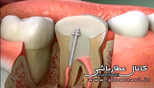 عصبکشی دندان