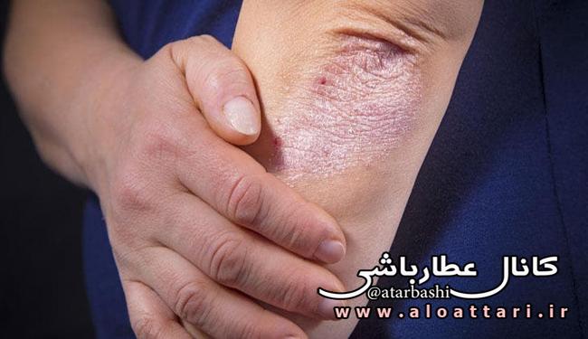 بیماری پوستی صدف