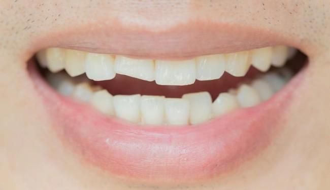 علائم دندان ترک خورده